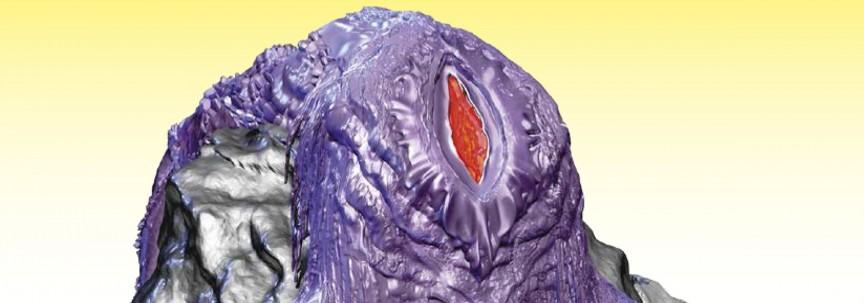 vulnicura-deluxe-2400x2200